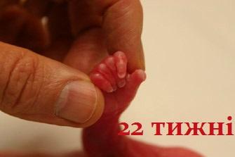 Аборт - помилка ціною в життя